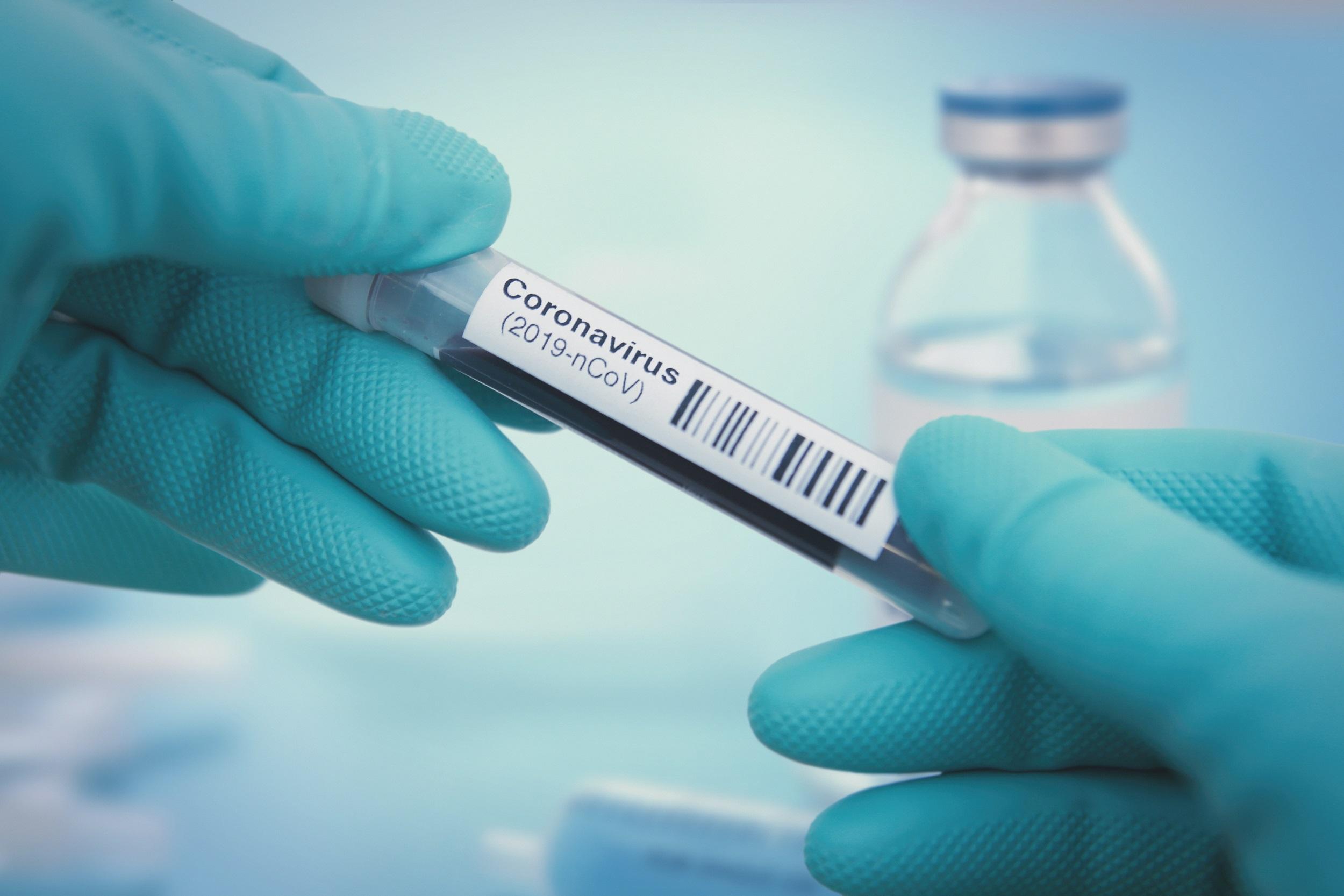 Informationen Zum Coronavirus Stadt Chemnitz